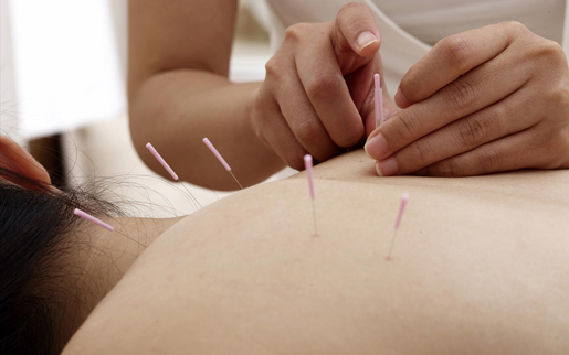 ACUPUNCTURE IN SEATTLE WA